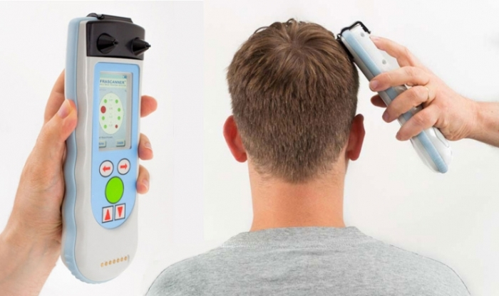 Handheld wand detects bleeding on the brain