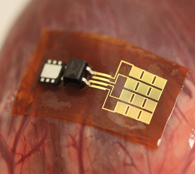 implantable-piezoelectric-nanoribbon-designboom00